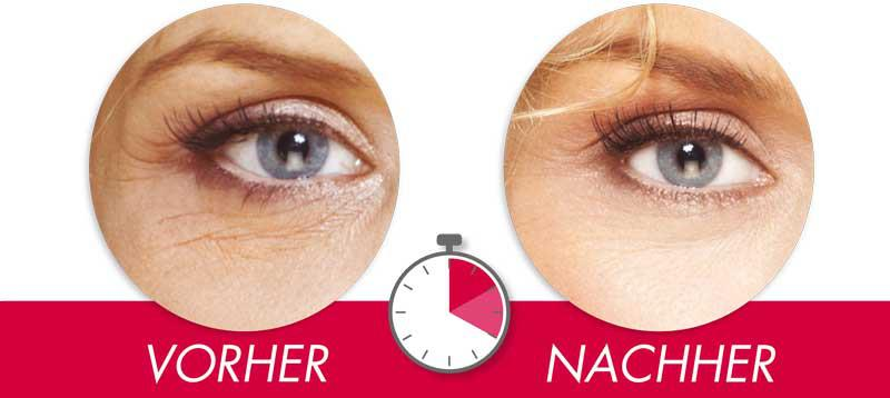 Mit Hyaluronsäurekapseln gegen Tränensäcke
